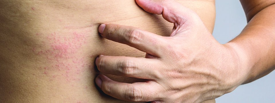 Viszkető végbélférgek, Milyen tünetei vannak a körféregférgeknek