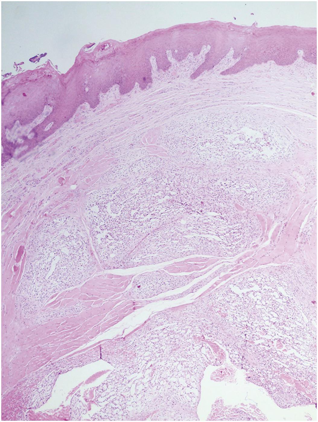 Exophyticus condyloma van a méhnyakamon