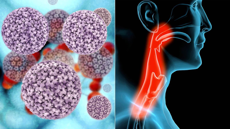 hpv 16 és a rák kockázata a gyöngyök