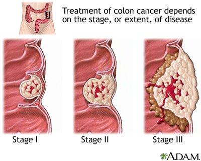 rektális rák nccn iránymutatás