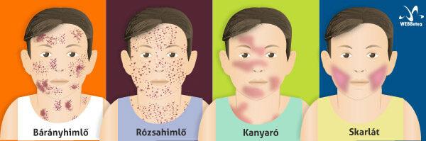 helmintás szemtünetek és kezelés