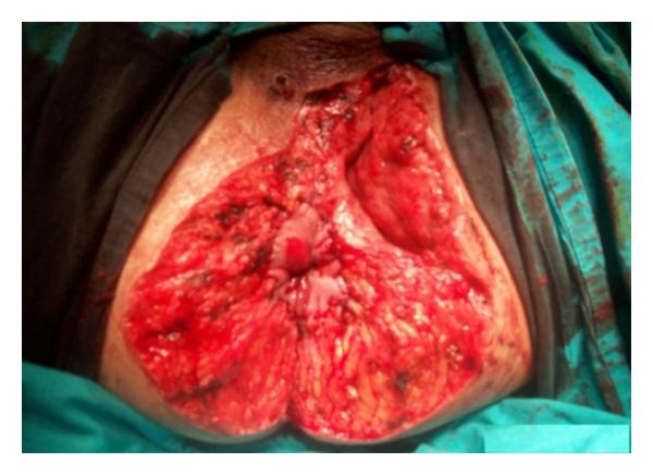 neoplazma a condyloma bőrén