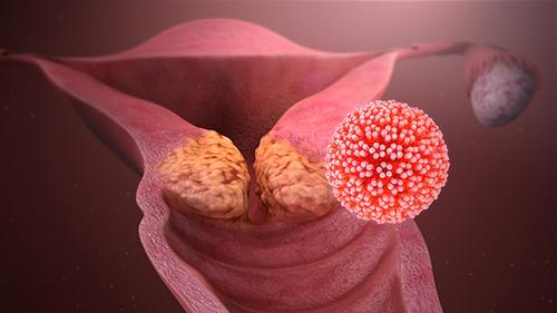 hpv vírus warzen mann