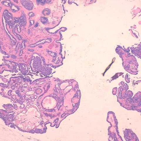 intraductalis papilloma hyperplasiaval papillómák a nyakon, mint a kezelendő gyógyszerek