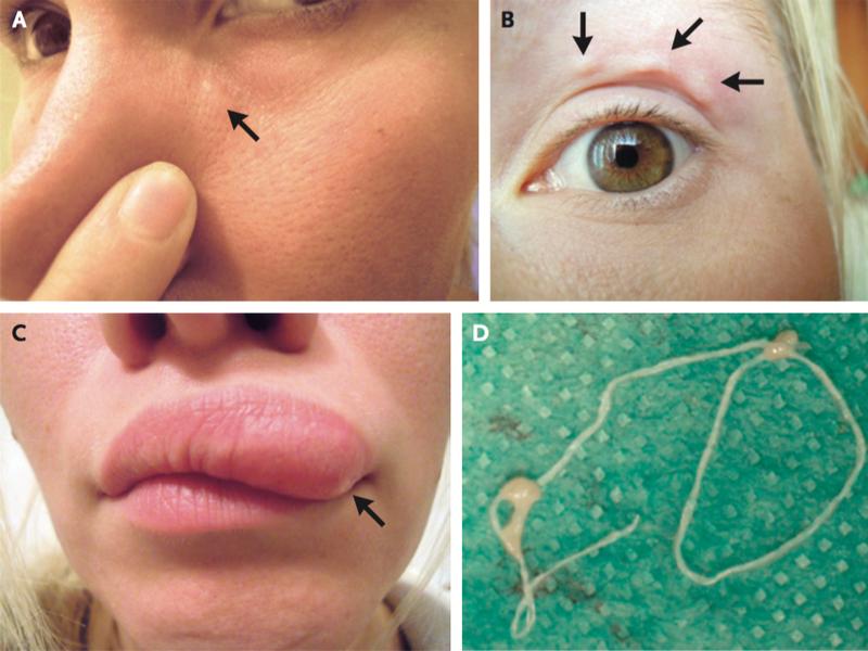 pinworm krém kezelés