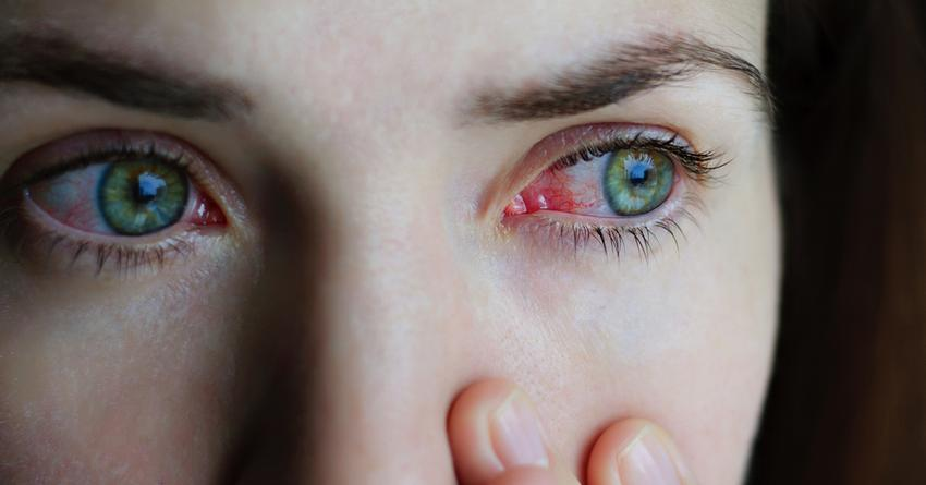 szemhéjak kezelése a szemhéjon