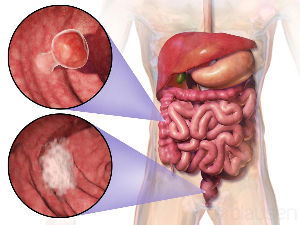 áttétes rák és hátfájás hogyan lehet harcolni a pinwormokkal a gyermekeknél