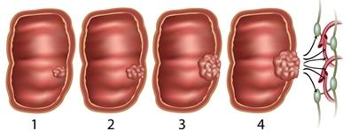 vastagbélrák nemi különbségek milyen gyógyszereket ihatnak a férgek megelőzésére