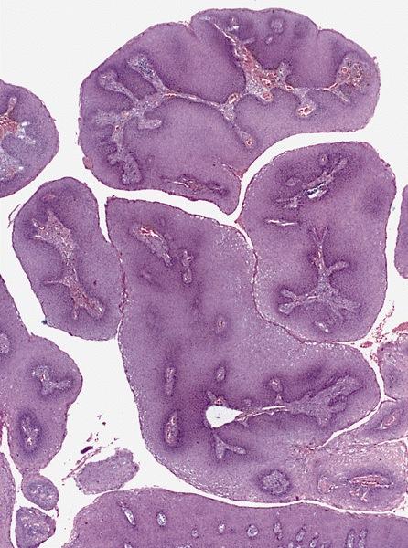 Exophyticus condyloma van a méhnyakamon)