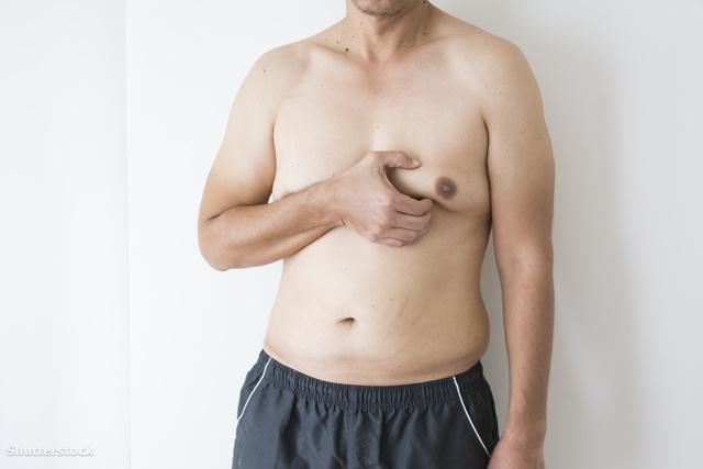 A mellrák tünetei férfiaknál