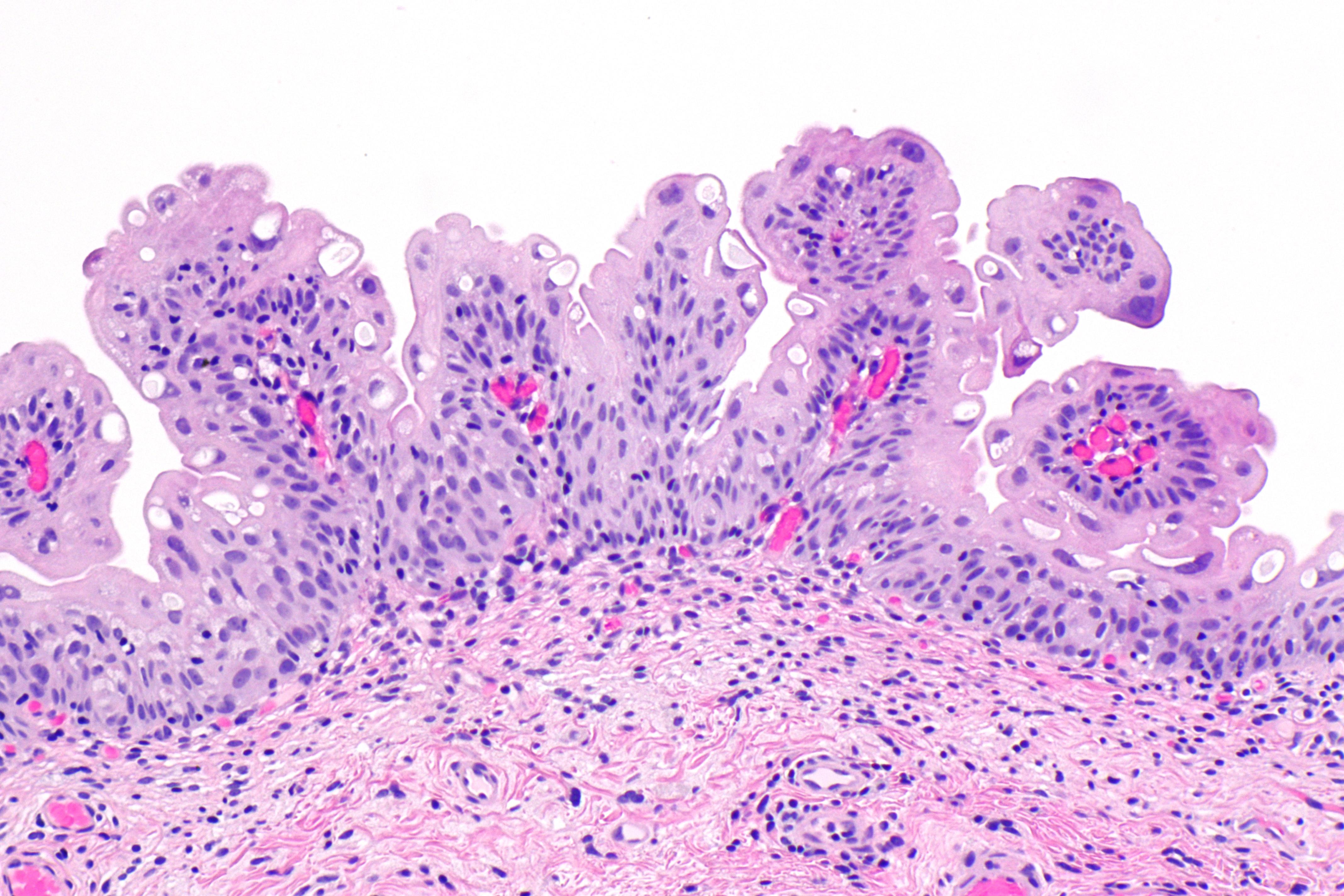 urothelialis papilloma)