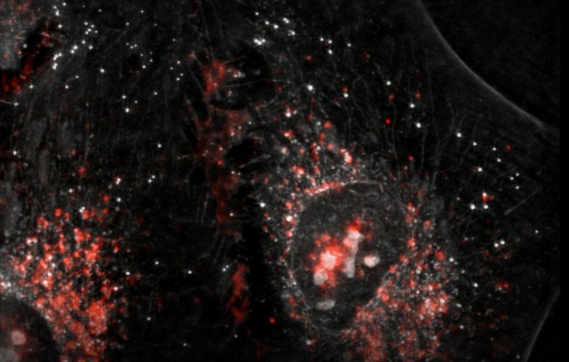 Soffritti és mtsai: Az aszpartám multipotenciális rákkeltő hatása