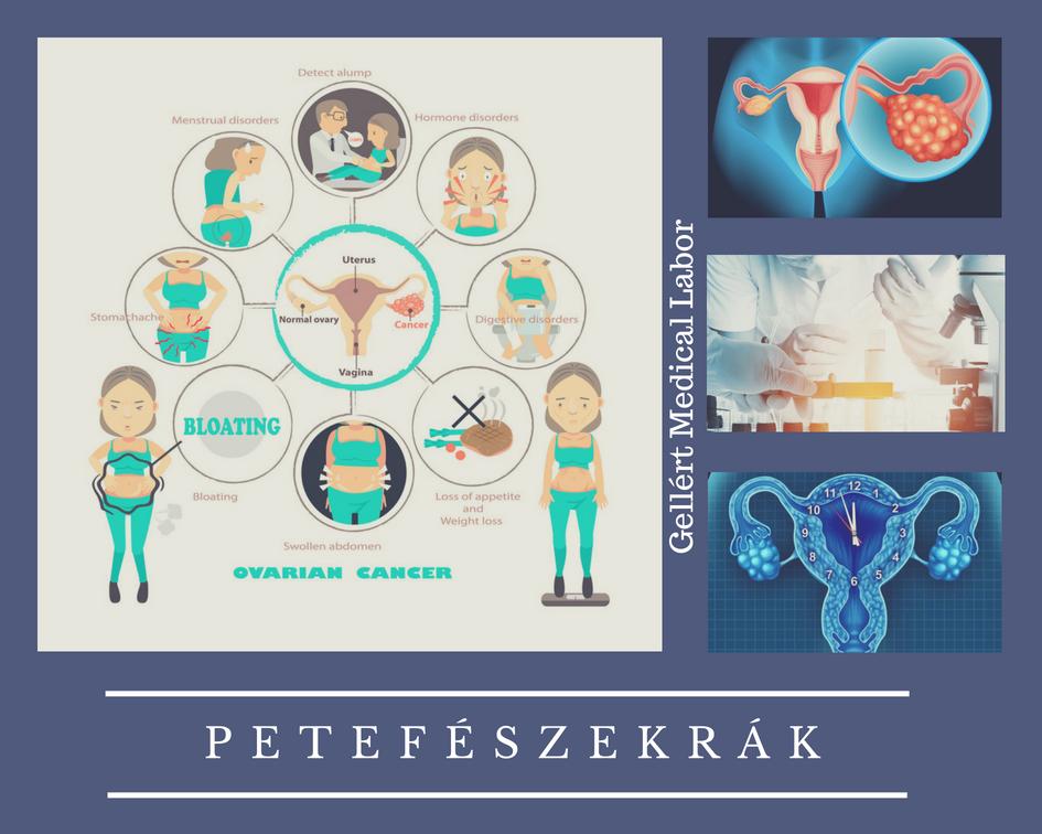 Petefészekrák, a könnyen megbúvó betegség