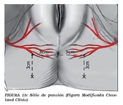 a genitális szemölcsök kolposzkópiájával
