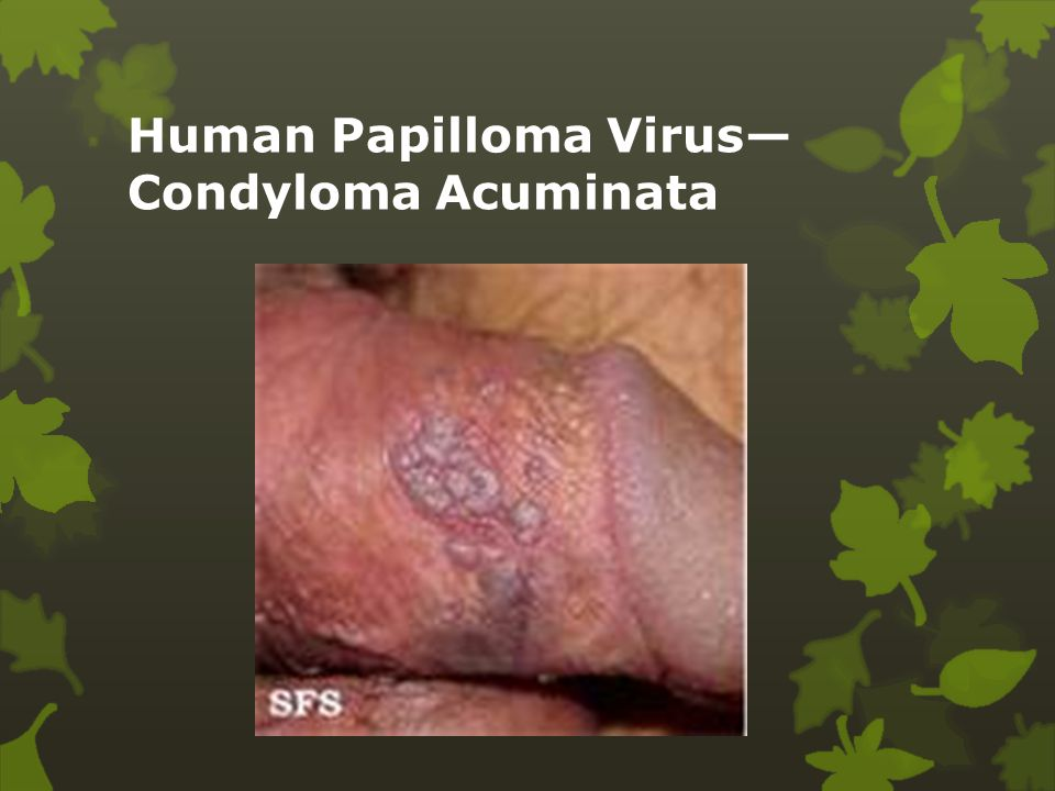 humán papilloma vírus cos e