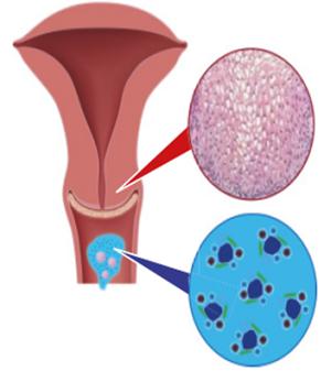 HPV szűrés
