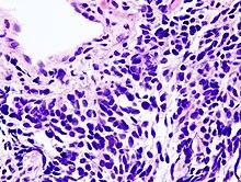 neuroendokrin rák icd 10