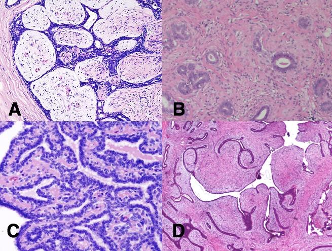 adenoma papilloma)