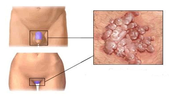 papilloma vírus mirigy tünetei