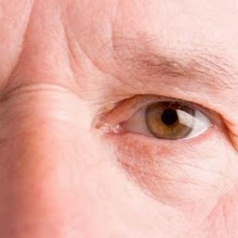 dermatitis 6 hónap nehézfém méregtelenítő kiegészítők