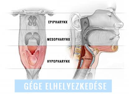 gége papillomatosis műtét
