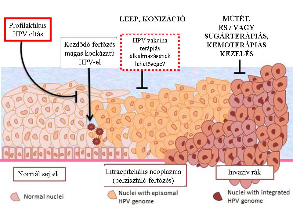 hpv magas kockázatú genotípus 16 18)