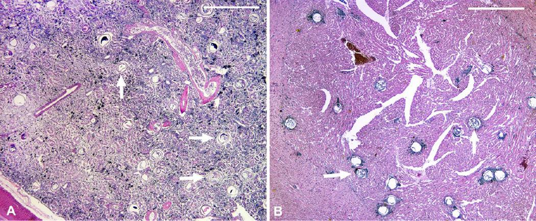 N. helminthoeca, Milyen paraziták lehetnek a lazacban